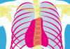 2ª edición del curso sobre Radiología Pediátrica en Continuum